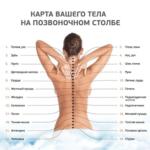 Лечение болей в спине — реабилитационный центр Движение в Херсоне