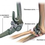 Реабилитация после операций на плечевом и локтевом суставе — Реабилитационный центр Движение в Херсоне