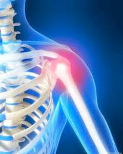 Реабилитация после операций на плечевом и локтевом суставе