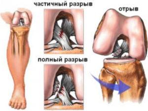Разрыв ПКС — Реабилитация после операций на коленном суставе и тазобедренном суставе
